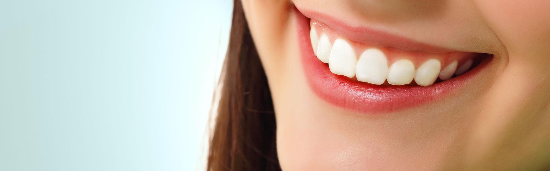 Beautiful smile of a girl who had dental veneers
