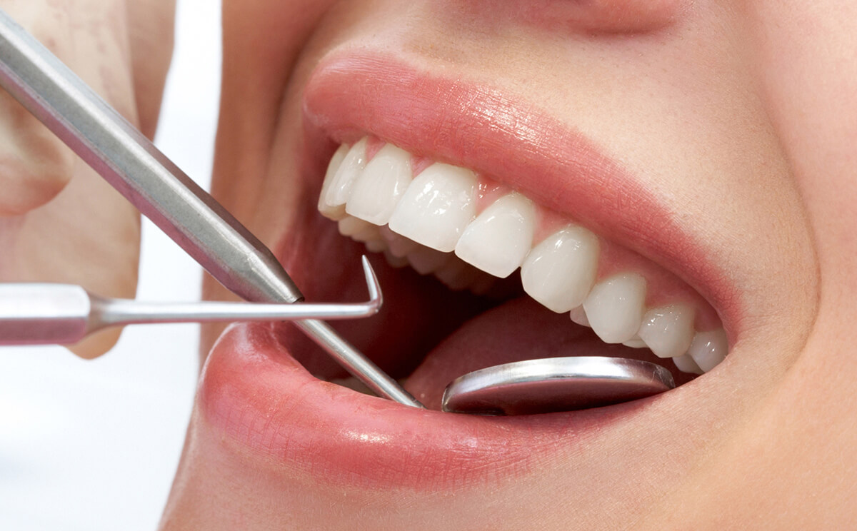 3 Types of Cosmetic Dental Care That Can Improve Your Smile