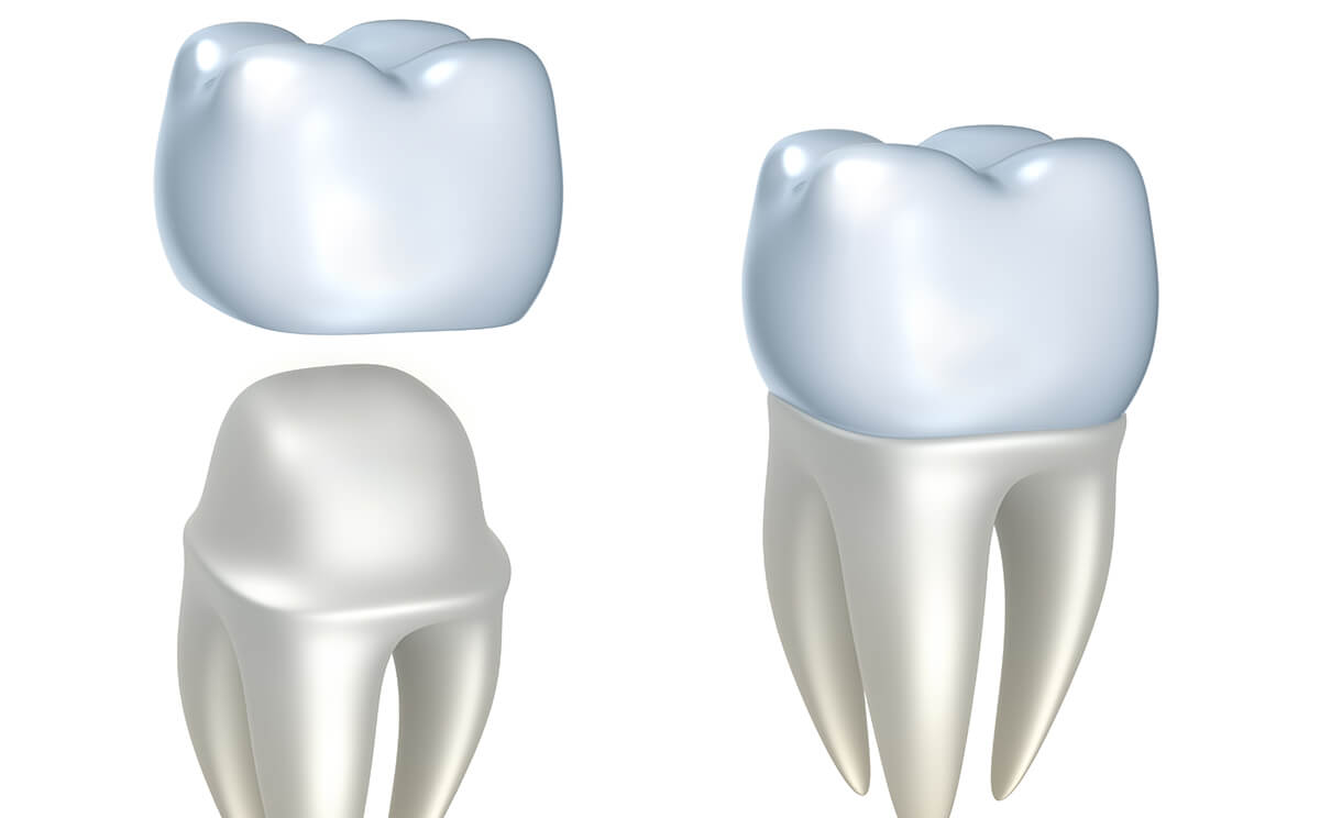 What Functions Do Dental Crowns and Bridges Perform?
